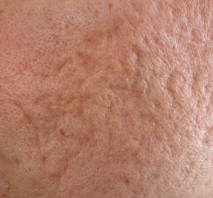 Integrity-Paramedical-Skin-Practitioners-Brisbane-Laser-Clinic-Acne-Scars