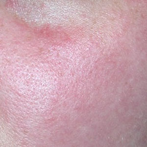 Integrity-Paramedical-Skin-Practitioners-Brisbane-Laser-Clinic-Flushing-Red-Cheeks