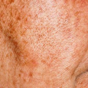 Integrity-Paramedical-Skin-Practitioners-Brisbane-Laser-Clinic-Pigmentation-Sundamage