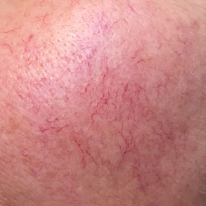 Integrity-Paramedical-Skin-Practitioners-Brisbane-Laser-Clinic-Spider-Veins-red-surface