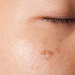 Integrity-Paramedical-Skin-Practitioners-Brisbane-Laser-Clinic-Sun-Spot-Spots-Facial