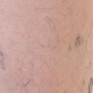 Integrity-Paramedical-Skin-Practitioners-Brisbane-Laser-Clinic-Veins-Telangiectasia-Laser