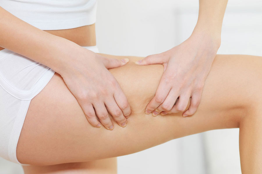 Integrity-Paramedical-Skin-Practitioners-Cellulite