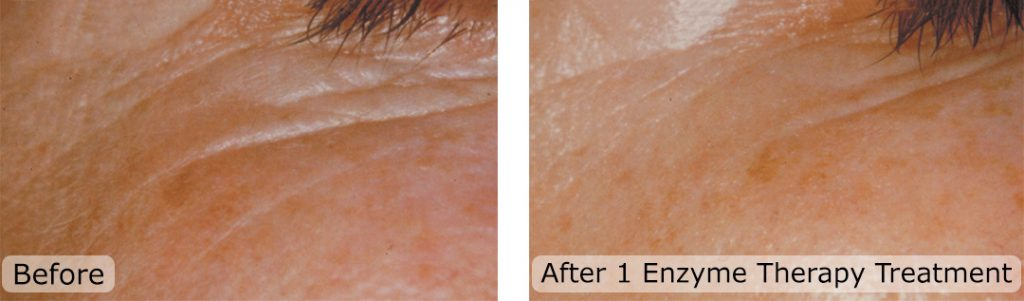 DMK Enzyme Therapy After One Treatment Before And After